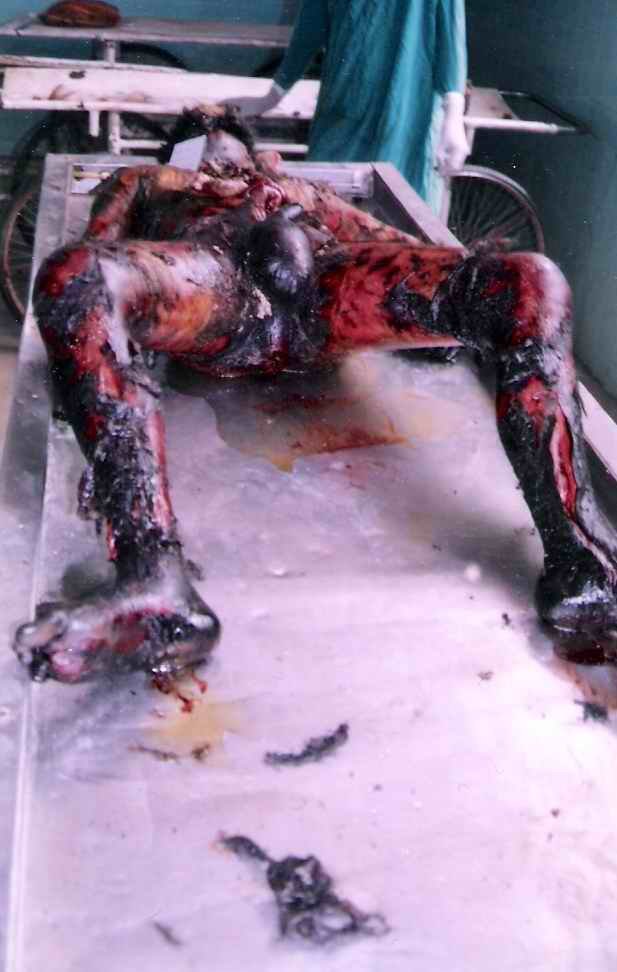 Female Autopsy Photos http://www.anilaggrawal.com/ij/vol_007_no_001/papers/paper001.html