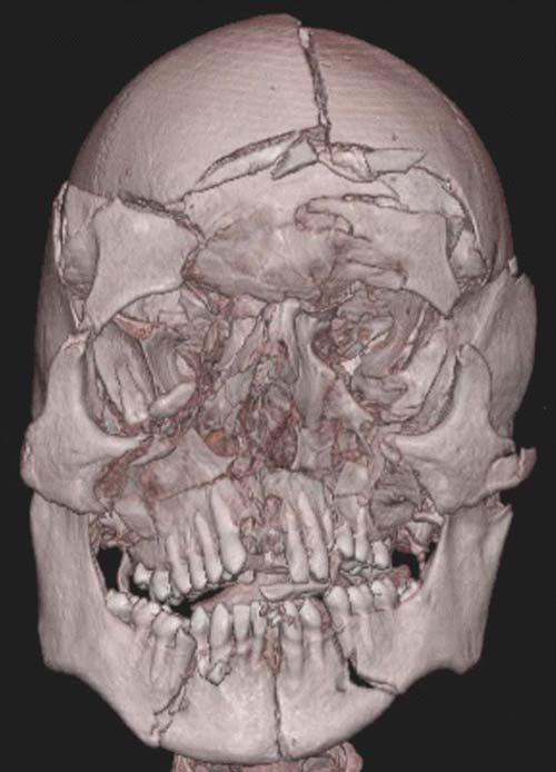 Facial fracture classification with